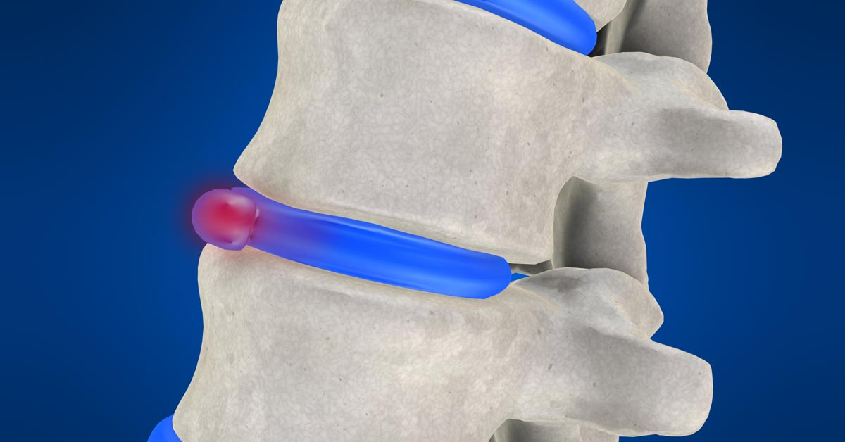 Moon Township non-surgical disc herniation treatment